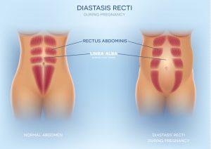 diastasis recti image