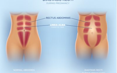 Ab separation in pregnancy: Diastasis what now?